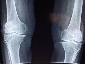 Raio-x de joelho com falta de cartilagem do joelho. Contraste de fundo preto com ossos brancos.